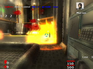 Images : Burn